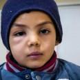 5/5 - Historia 6-letniego irackiego chłopca Hodeifah