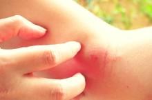Leksandrowa: AZS, infekcje grzybicze i bakteryjne